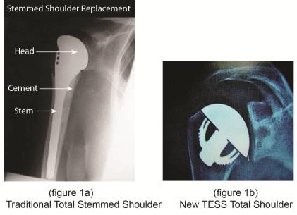 TESS Total Shoulder