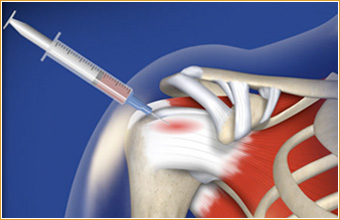 Platelet Rich Plasma (PRP therapy or PRP injections) to enhance Rotator Cuff healing.