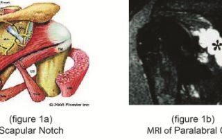Suprascapular Nerve Entrapment-Paralabral Cyst