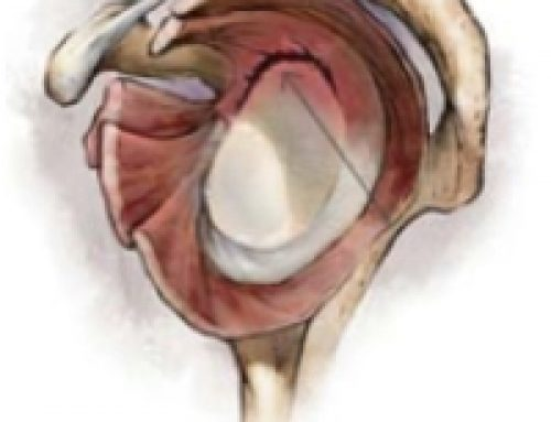 SLAP Tear | Labral Tear