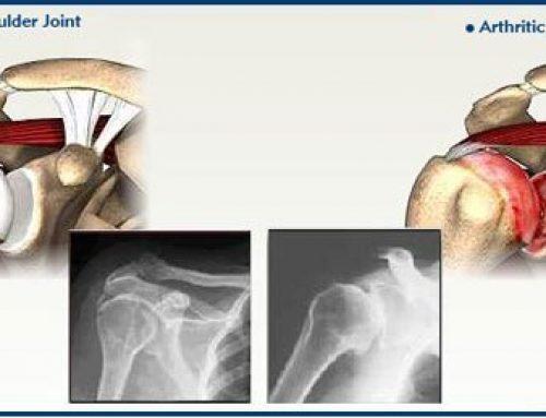 Arthritis in Shoulder