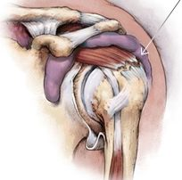 Bone and Joint Specialists- rotator cuff tear photo