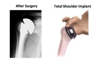 Total Shoulder Replacement Implant