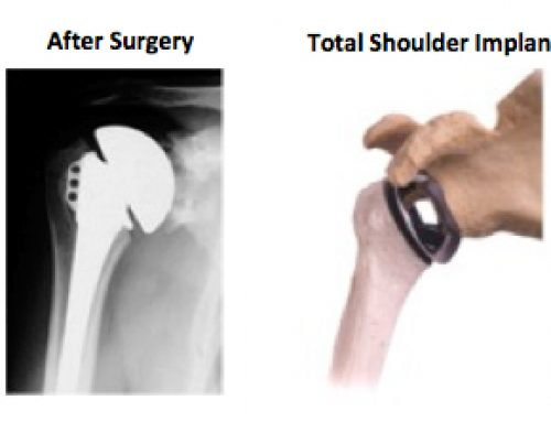 Total Shoulder Replacement