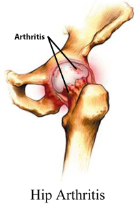 Bone and Joint Specialists, Arthritis in Hip Photo