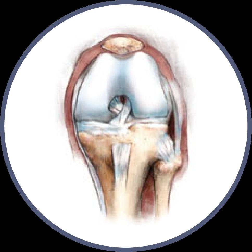 Knee Orthopedic Library