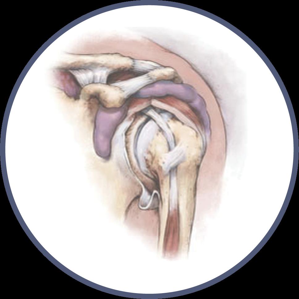 Shoulder Orthopedic Library